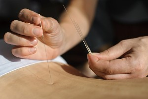 How-Acupuncture-Has-Been-Used-for-Pain-Management